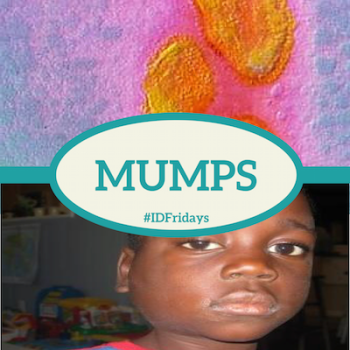 #IDFridays Week 10: Mumps: https://www.drasatrust.org/mumps/