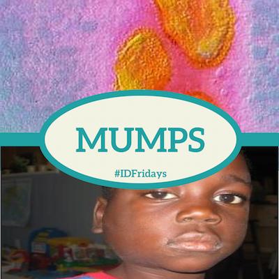 #IDFridays Mumps