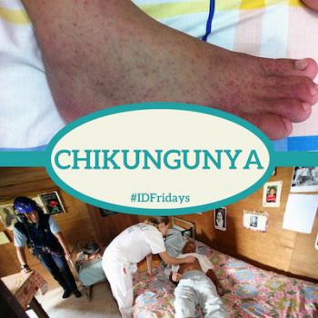 #IDFridays Week 12: Chikungunya: https://www.drasatrust.org/chikungunya/