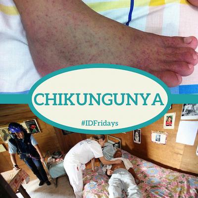 Chikungunya #IDFridays
