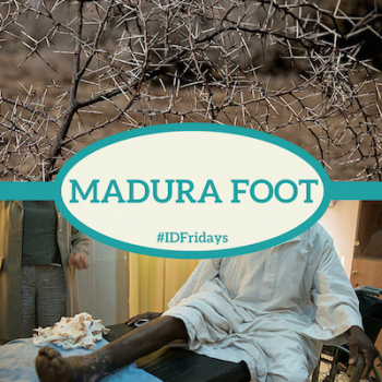 #IDFridays Week 19: Madura Foot: https://www.drasatrust.org/madura-foot/