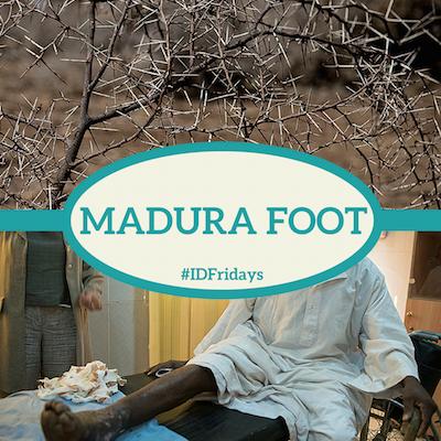 #IDFridays: Madura foot