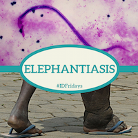 Elephantiasis 200px 2