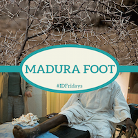 Madura foot 200px