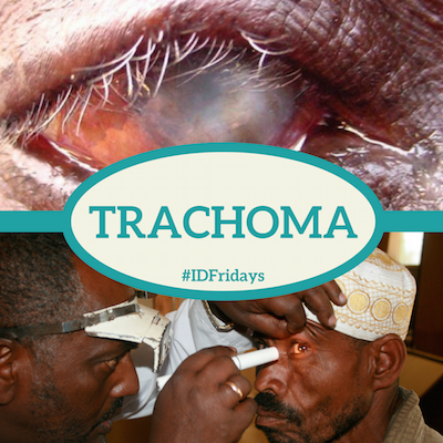 #IDFridays: Trachoma